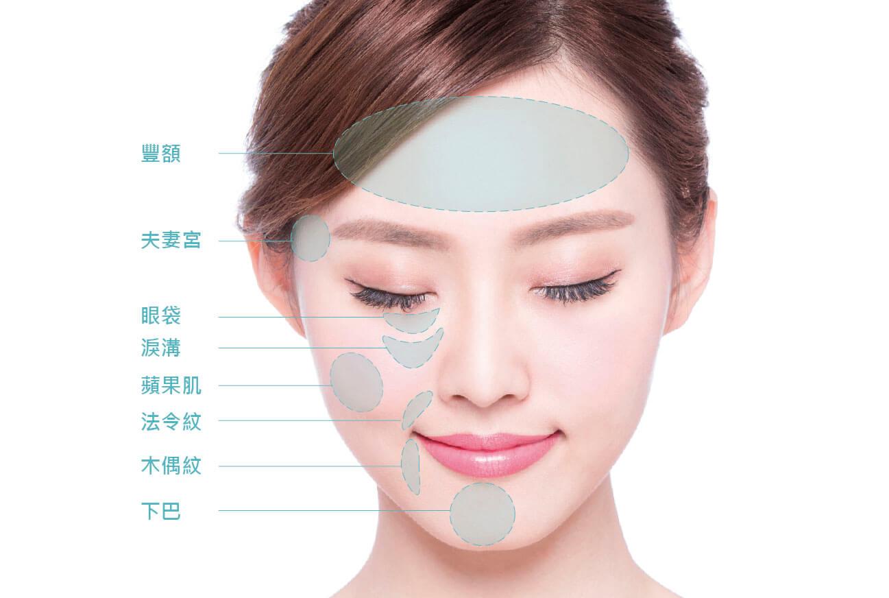 自體脂肪適用臉部 豐額、夫妻宮、眼袋、淚溝、下巴、蘋果肌、改善法令紋、改善木偶紋